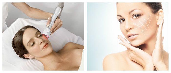 Инновационная методика омоложения кожи лица – биоревитализация