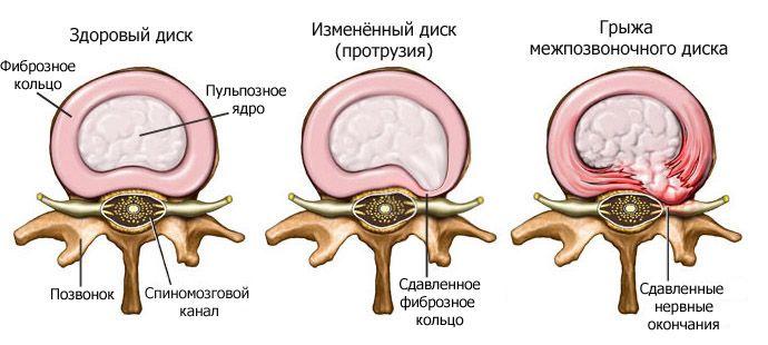 Какие препараты лучше всего снимают боль при межпозвоночной грыже?