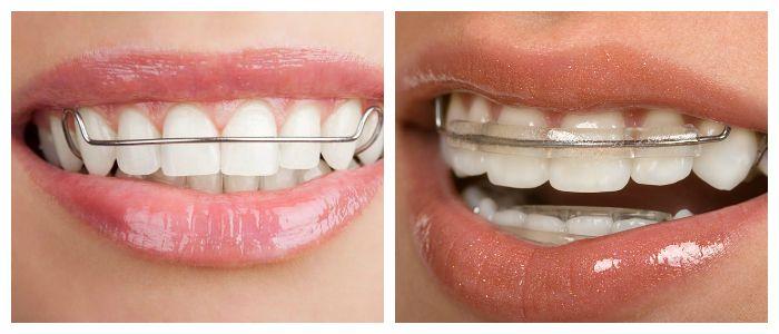 Выравнивание зубов с помощью пластин