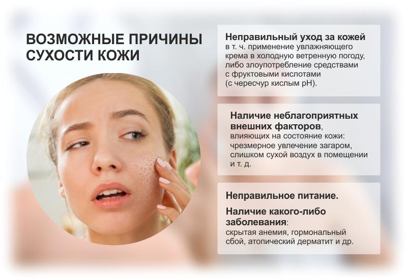 Инфографика: возможные причины сухости кожи